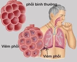 Bệnh viêm phổi, nguyên nhân và cách phòng bệnh