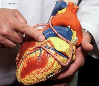 Bạn hiểu như thế nào về bệnh tim mạch ?