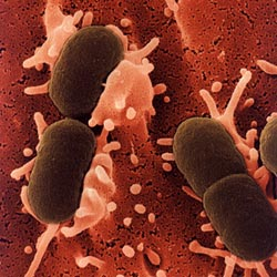 Cơ chế bệnh sinh nhiễm khuẩn huyết (Sepsis)