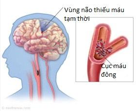 Cơn thiếu máu não thoáng qua: cảnh báo và cơ hội ngăn ngừa đột quỵ 2012