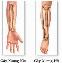 gay-xuong