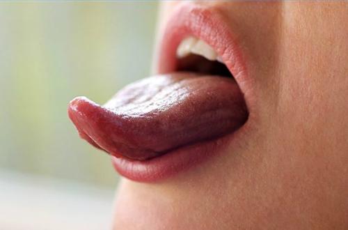 Biết tình trạng sức khỏe của bạn qua nhìn lưỡi