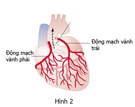 Bệnh thiểu năng mạch vành mức nhẹ có cần ăn kiêng?