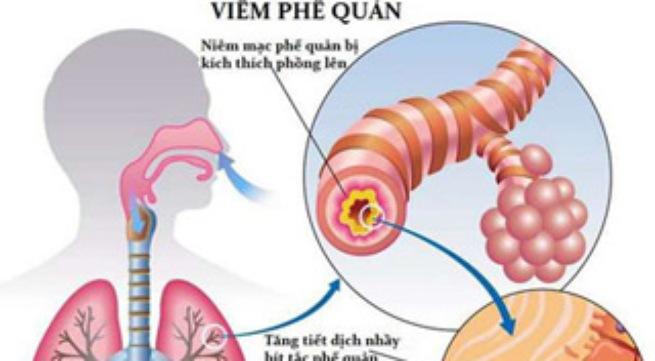 Bệnh viêm phế quản cấp và những điều bạn cần biết
