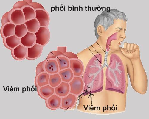 Tổng quan về bệnh viêm phổi