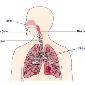 Bạn hiểu như thế nào về ung thư phế quản ?