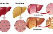 Bệnh gan nhiễm mỡ và những điều bạn cần nên biết