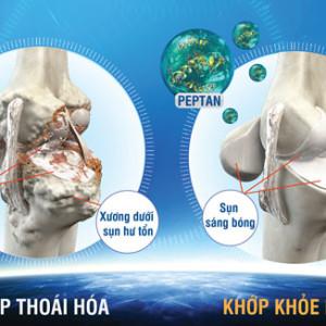 Sự biến đổi xương dưới sụn trong thoái hoá khớp