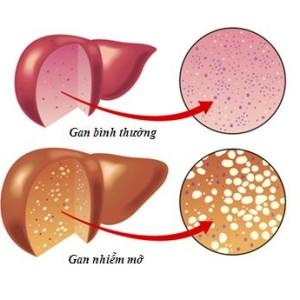 Nguy hiểm khôn lường của gan nhiễm mỡ tiến triễn thành ung thư gan