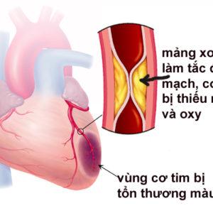"""Tìm hiểu biến chứng """"nhồi máu cơ tim"""" do tăng huyết áp"""