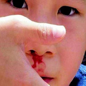 Chế độ ăn uống và những bài thuốc trị chảy máu cam ở trẻ