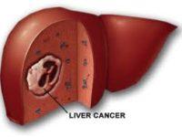 Tổng hợp các thông tin về thuốc bổ gan hewel