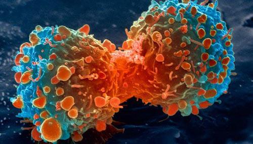 Tìm hiểu về bệnh ung thư – sự nguy hiểm và nguyên nhân gây bệnh