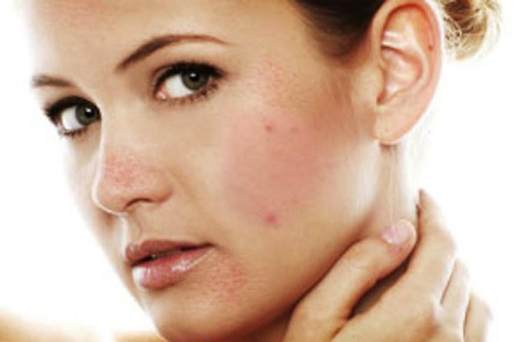 Tại sao ung thư da lại thường gặp ở độ tuổi trung niên