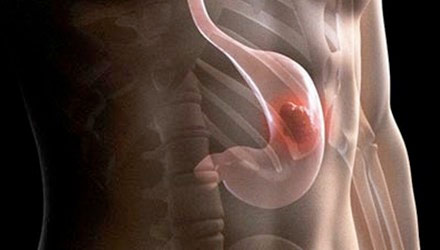 Những đối tượng dễ mắc bệnh ung thư dạ dày bạn cần biết