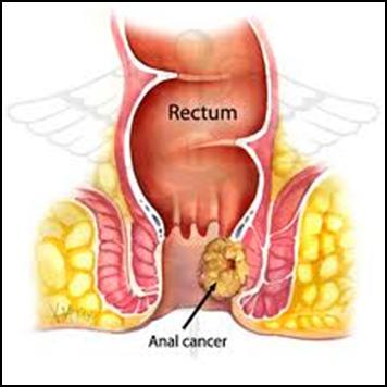 Triệu chứng và cách phòng ngừa ung thư hậu môn