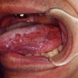 Ung thư lưỡi và một số điều cần biết