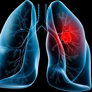 Tìm hiểu những triệu chứng của bệnh ung thư phổi