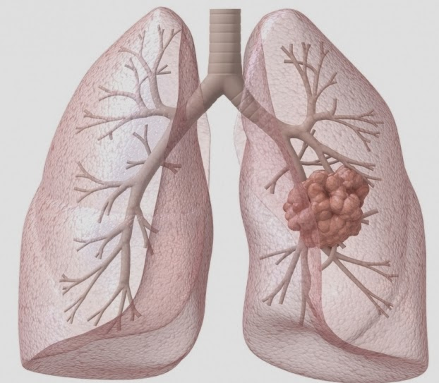 Tại sao hút thuốc và sáng sớm lại nguy cơ cao mắc ung thư phổi