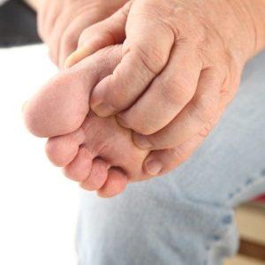 Bệnh chàm tổ đỉa, nguyên nhân, triệu chứng và cách chữa trị
