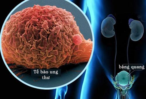 Những biểu hiện và cách ăn uống giúp phòng tránh ung thư bàng quang