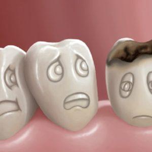 Bệnh đau răng, nguyên nhân, triệu chứng và cách chữa trị