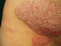 Điều trị bệnh vảy nến phải cần dùng thuốc nào?