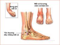Nguyên nhân và dấu hiệu bệnh viêm khớp cổ chân