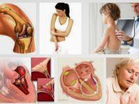 Nguyên nhân và dấu hiệu gây ra bệnh thấp khớp cấp mà bạn nên biết