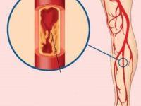 Những căn bệnh mà acid uric trong máu gây ra