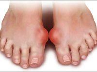 Bệnh gút và các biến chứng của bệnh gút bạn nên biết