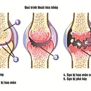 Những căn bệnh viêm khớp mà bạn nên cần biết