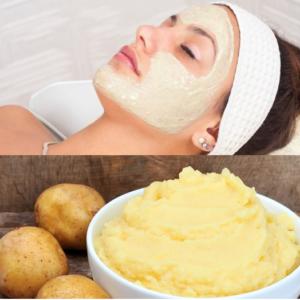 Sở hữu làn da sạch mụn với 4 loại mặt nạ từ thiên nhiên