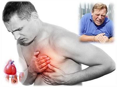 Những nguyên nhân gây suy tim mà người bệnh cần lưu ý