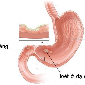 Cây thuốc nam chữa viêm loét dạ dày tá tràng