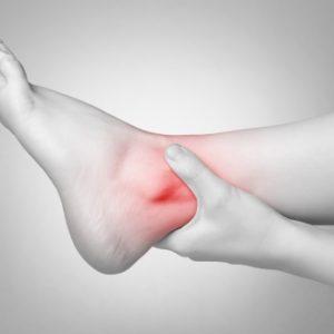 Viêm khớp cổ chân sau chấn thương cần cách thực nào để điều trị?