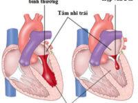 Những thông tin bổ ích về bệnh hở van tim