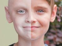 Nguyên nhân, triệu chứng của bệnh ung thư máu