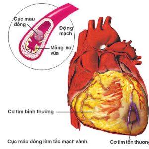 Tổng quan về bệnh hẹp động mạch vành