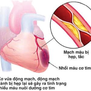 Thiếu máu cơ tim- bệnh tim mạch nguy hiểm cần điều trị kịp thời