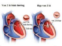Những điều cần biết về bệnh hẹp van tim