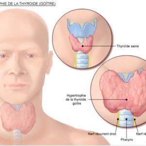 Một số điều cần biết về bệnh ung thư tuyến giáp
