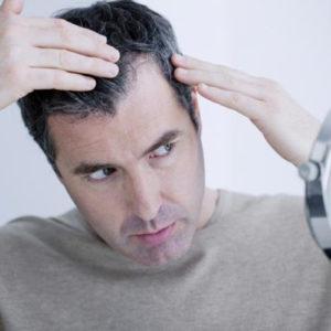 Giải pháp ngừa rụng tóc ở tuổi trung niên