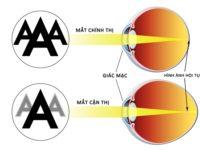 Nguyên nhân, triệu chứng của bệnh cận thị khúc xạ