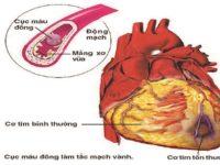 Nguyên nhân, triệu chứng của bệnh nhồi máu cơ tim cấp