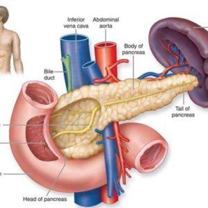 Nguyên nhân, dấu hiệu của bệnh ung thư tuyến tụy