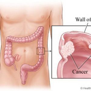 Nguyên nhân, triệu chứng của bệnh ung thư ruột già