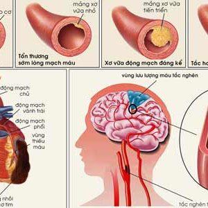 Nguyên nhân, triệu chứng của bệnh xơ vữa động mạch