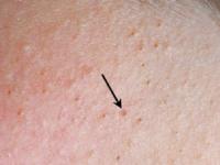 Cách xử trí các bệnh về da khi mùa lũ đến