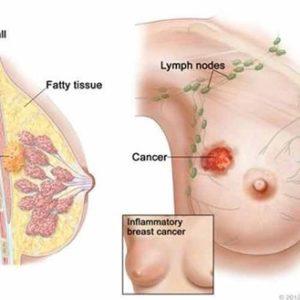 Những thông tin bạn cần biết về ung thư vú